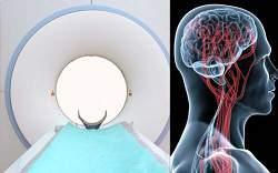 Gehirnforschung: Burnout und Depression2